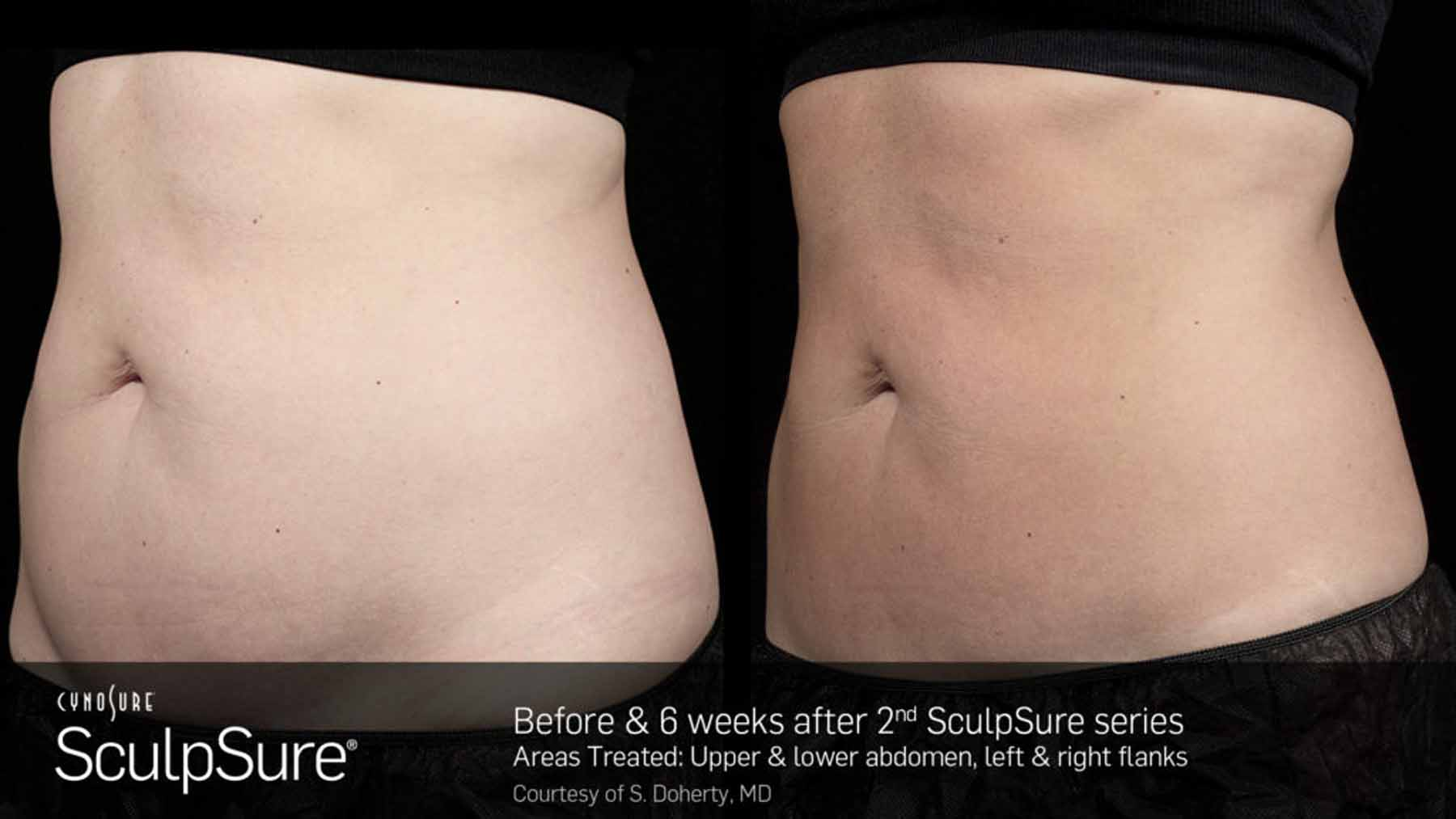 Before and after SculpSure treatment on abdomen