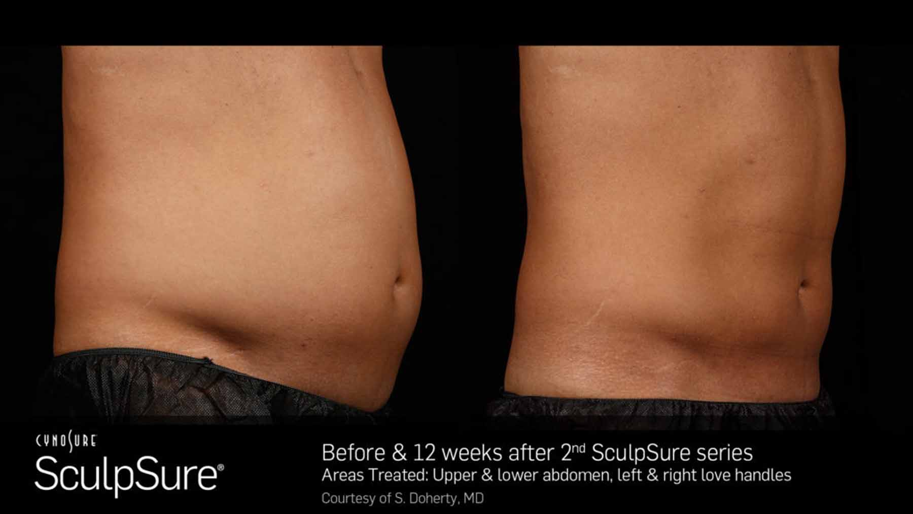 Before and After image of abdomen treated with SculpSure treatment.