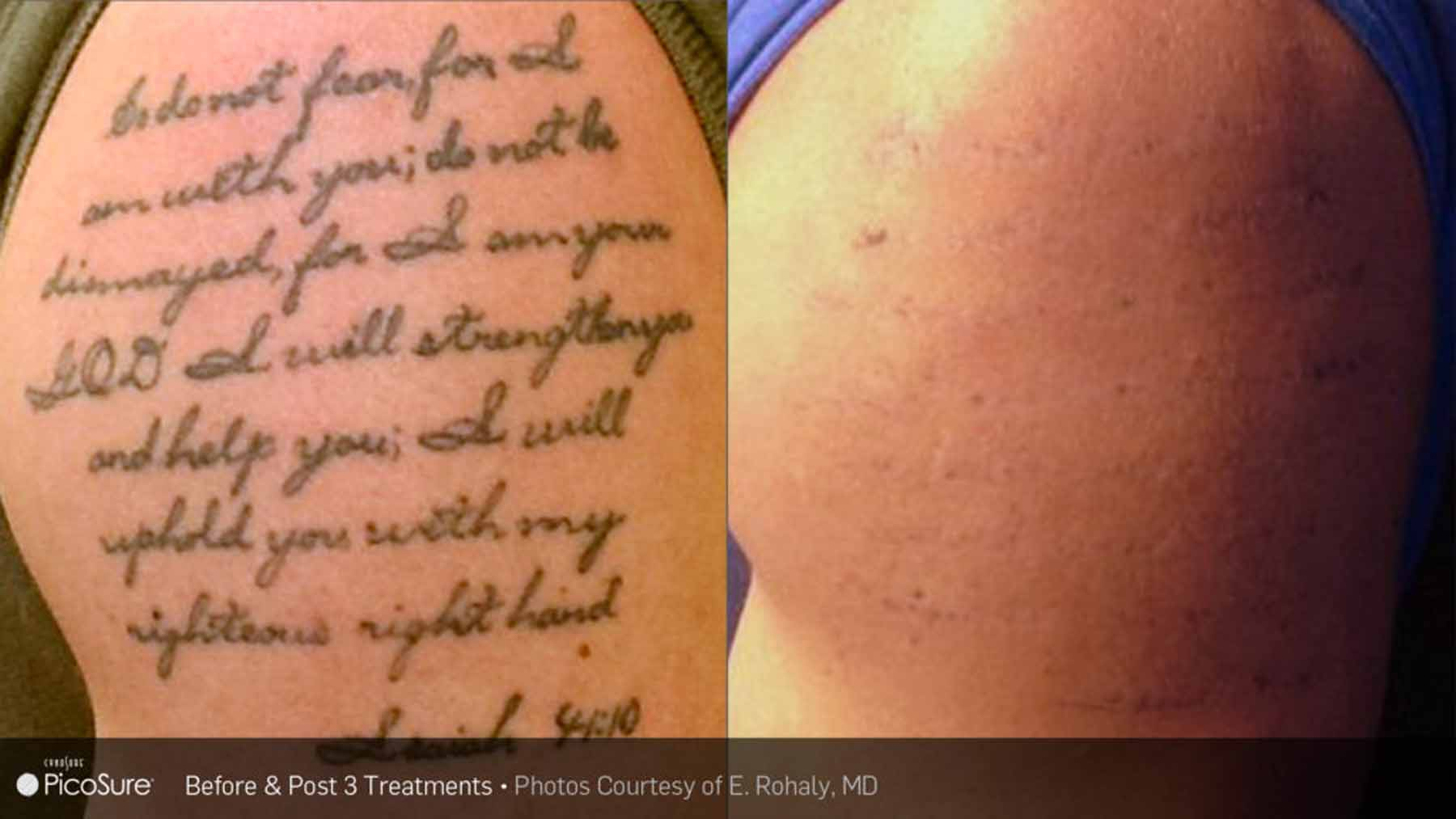 Before and after laser removal treatment with Picosure