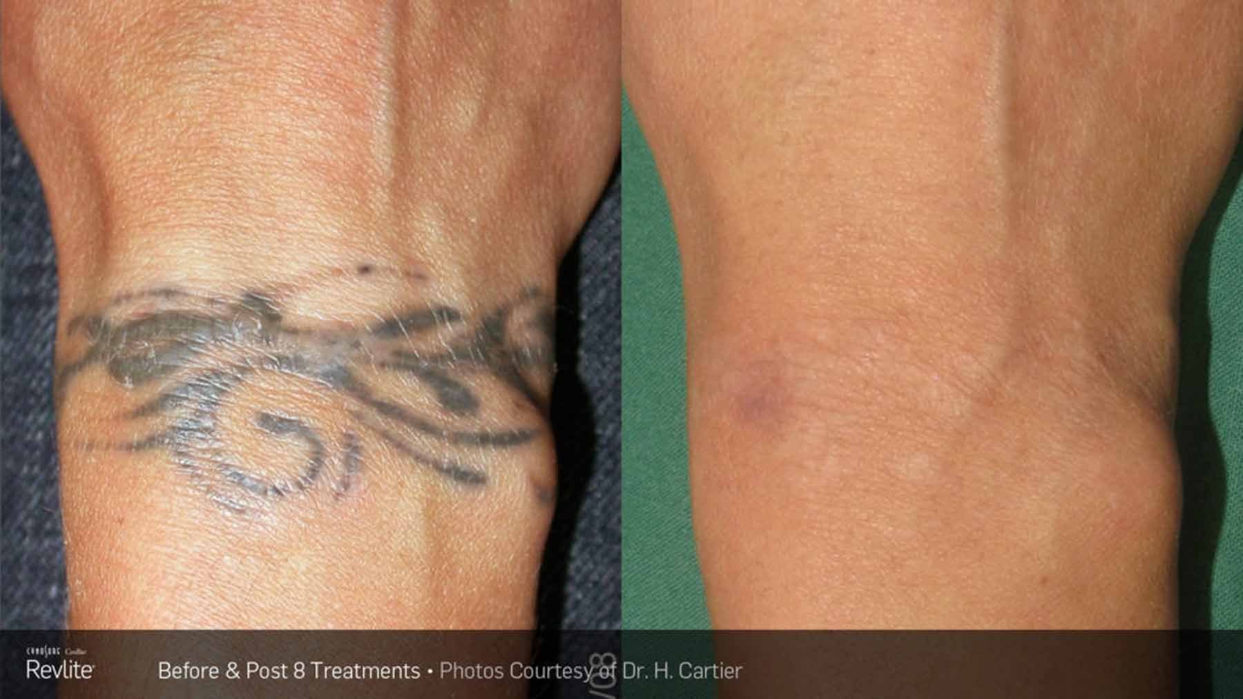 Tattoo being removed with RevLite