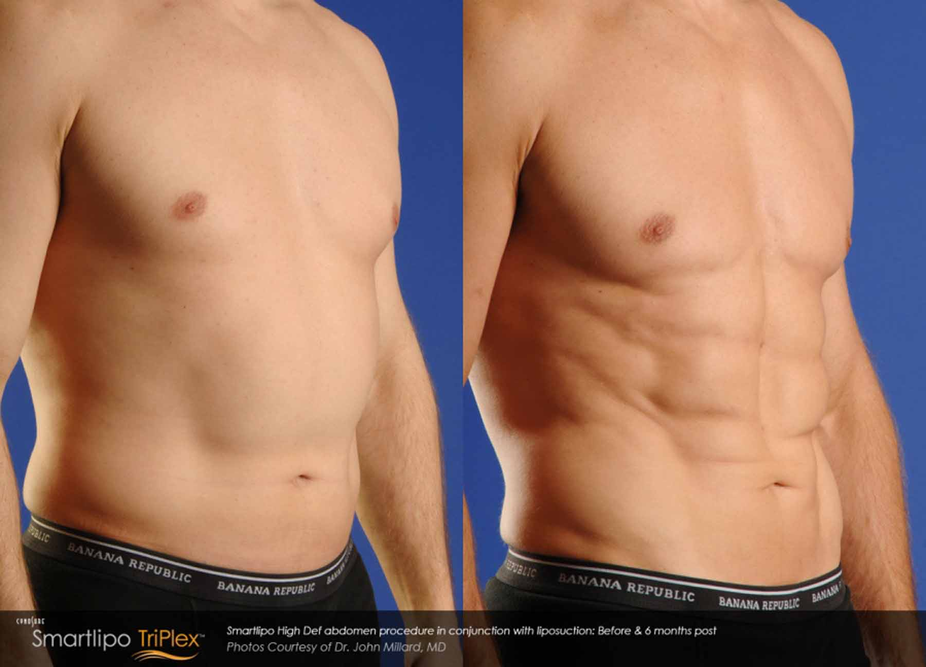 Before and After of man being treated with SmartLipo TriPlex