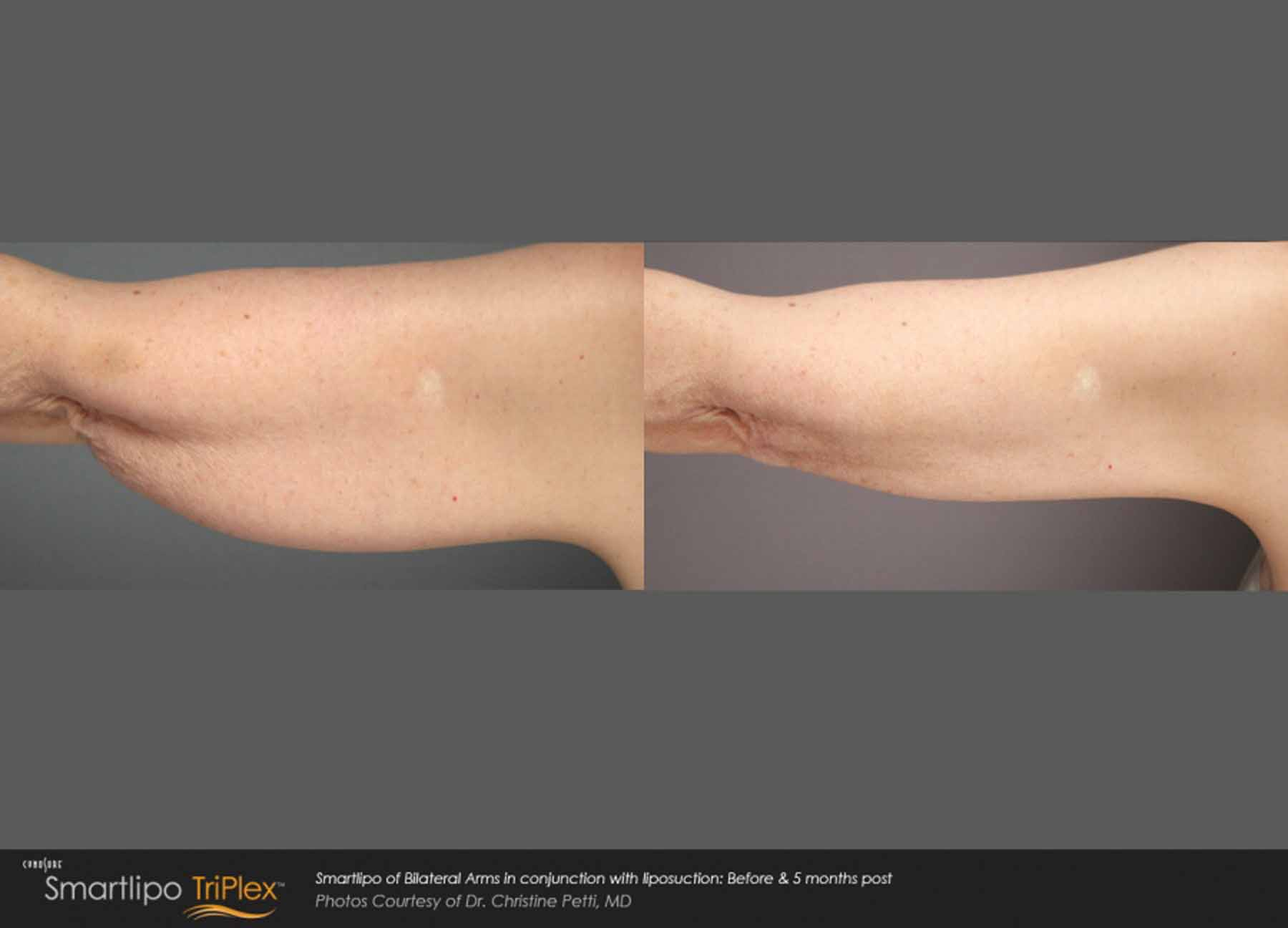 Woman's arm before and after being treated with SmartLipo TriPlex