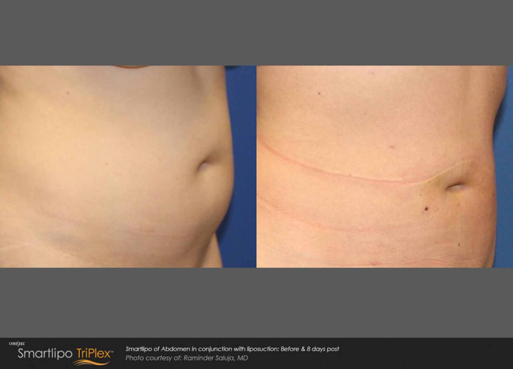 Abdomen before and after being treated with SmartLipo TriPlex